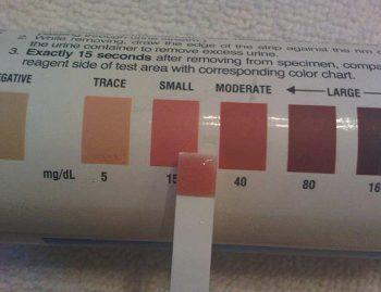 тест-полоски для определения кетоновых тел в моче