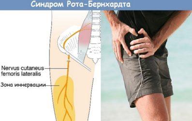 Болезнь Рота симптомы