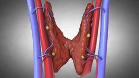 Гиперпаратиреоз виды симптомы и лечение