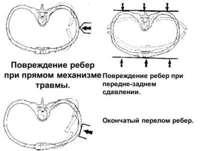 механизм переломов ребер