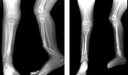 Ложный сустав большеберцовой кости