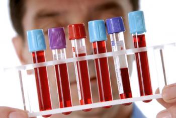анализ крови на боррелиоз