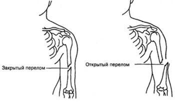 Переломы виды переломов первая помощь