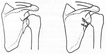 Перелом лопатки остеосинтез