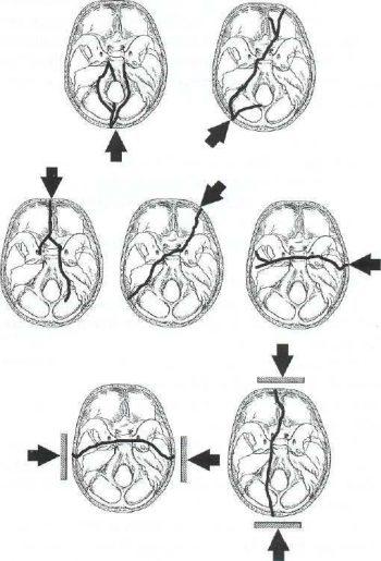 Перелом основания черепа виды