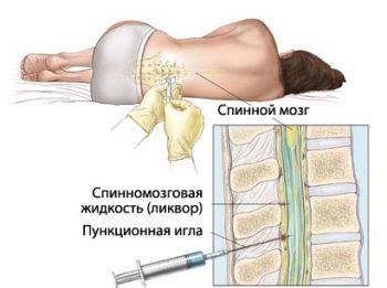 спинномозговая пункция
