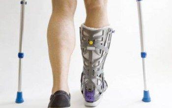 Перелом пяточной кости лечение реабилитация