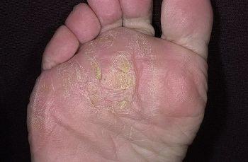 Местное переохлаждение ног Траншейная стопа