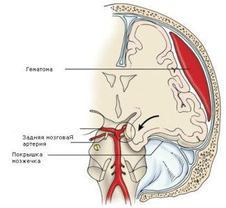 сдавливание головного мозга гематомой