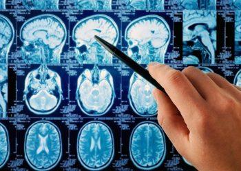 Сдавление головного мозга диагностика