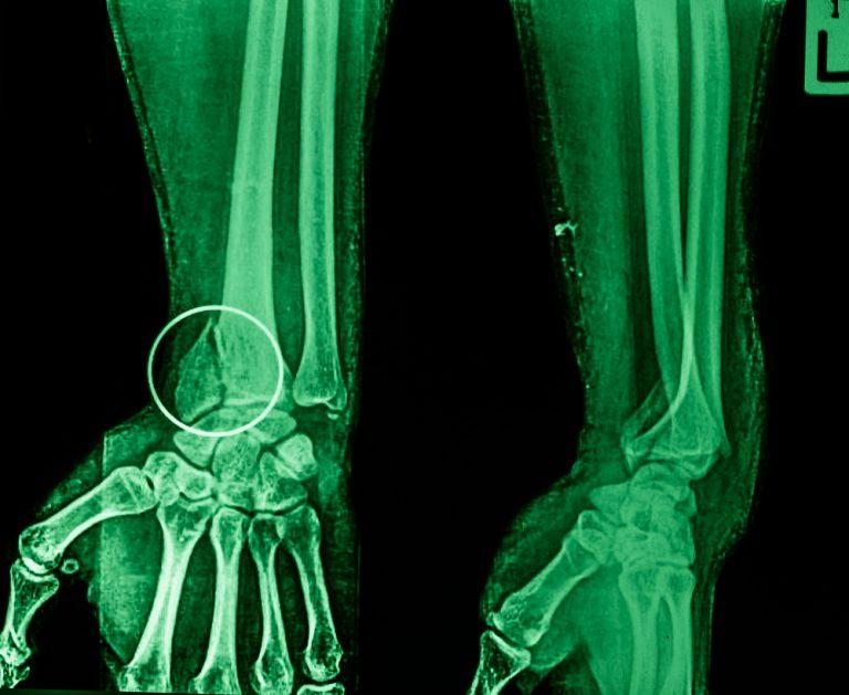 перелом нижнего конца лучевой кости фото ответ