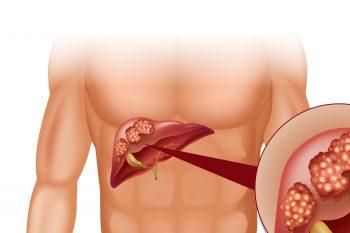 Рак печени: признаки, современные методы лечения