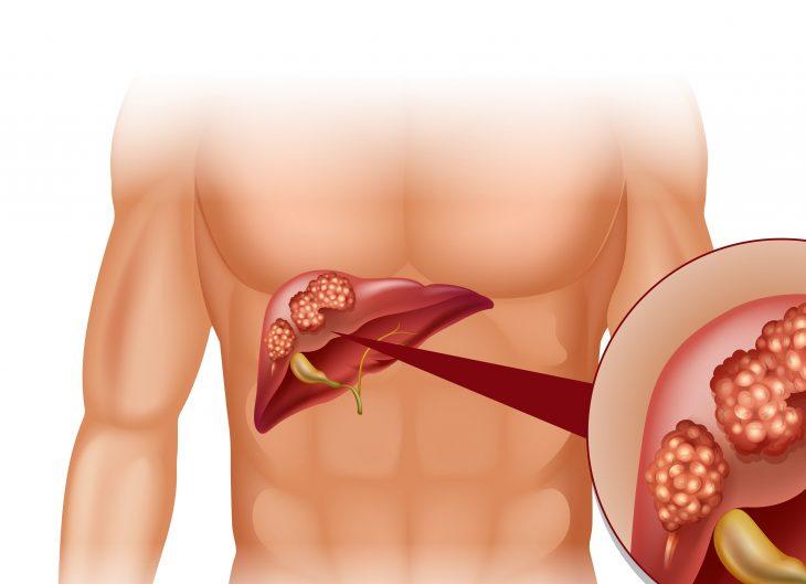 Лечение печени при поражении раком