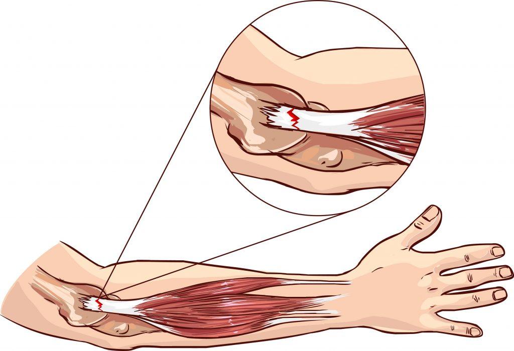 Растяжение грудной мышцы диагностика и лечение