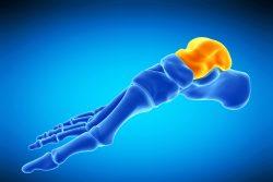 Перелом таранной кости: механизмы травмы, симптомы, лечение
