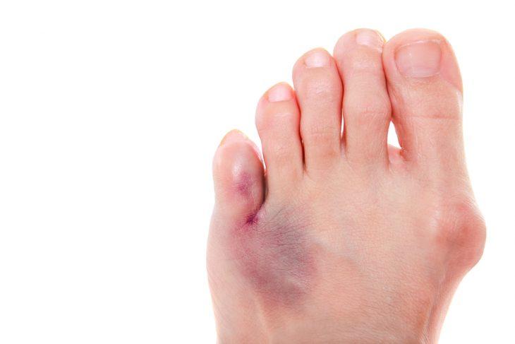 Лечение переломов пальцев стопы