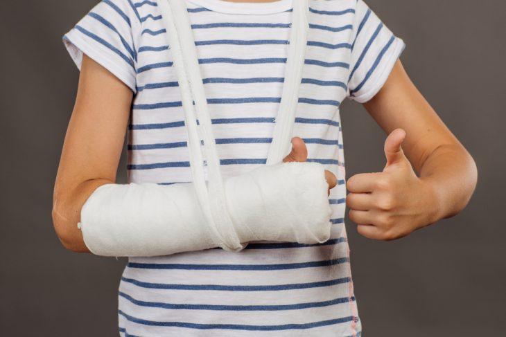 Перелом лучевой кости всё о срастании, смещении и лечении