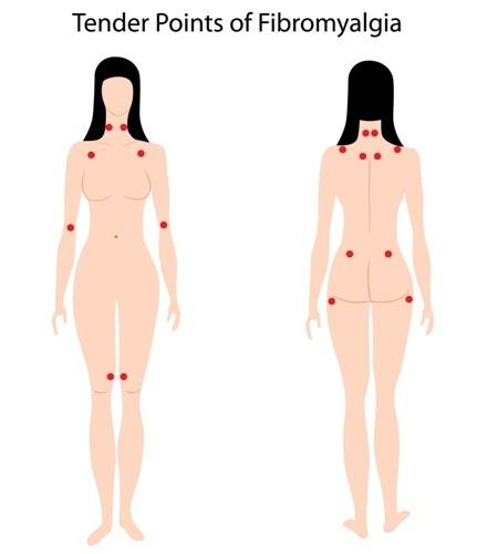 Фибромиалгия: симптомы и лечение