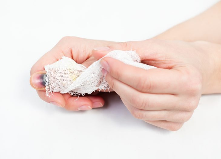 Вывих пальца на руке: что делать, лечение, симптомы