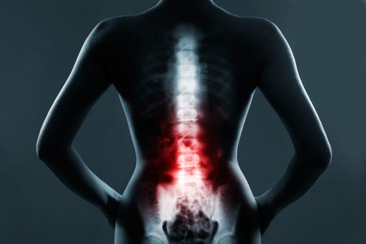 Компрессионный перелом позвоночника l1 реабилитация