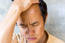 Мелазма: симптомы, лечение