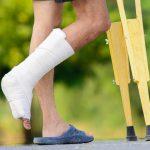 Перелом лодыжки со смещением и без: симптомы, лечение, прогнозы