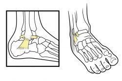 Вывих ноги в районе щиколотки: что делать?