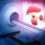 МРТ сердца: что показывает, показания, подготовка к исследованию