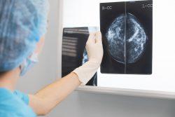 Маммография: когда делать, показания