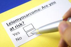 Лейомиосаркома: симптомы, современные методы лечения
