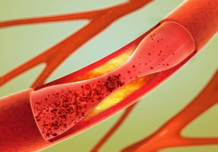 Реоэнцефалография: что это такое, показания, методика проведения