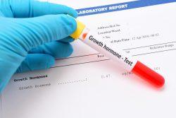 Гормон СТГ: функции, норма в крови, причины нарушений