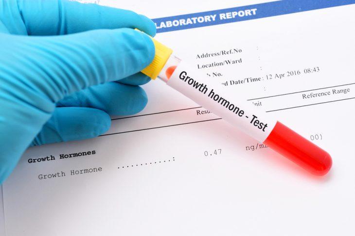 анализ крови норма сахара и холестерина