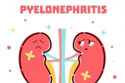 Острый пиелонефрит: симптомы, диагностика, лечение