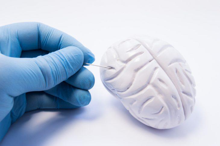 Биопсия головного мозга стереотаксическая