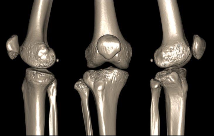 Зачем проходить МРТ коленного сустава