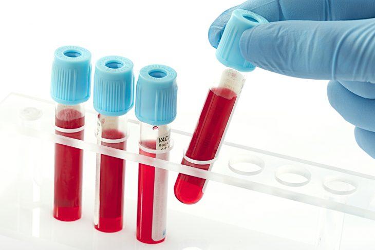Анализ крови на свёртываемость: показатели, расшифровка