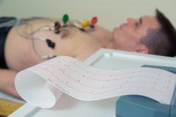 Что показывает ЭКГ сердца, расшифровка у взрослых
