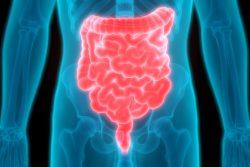 Рентген кишечника: показания, противопоказания, методика проведения