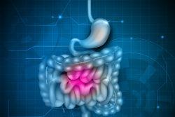 Cиндром короткой кишки: почему возникает и как лечить