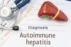 Аутоиммунный гепатит: симптомы, тактика лечения