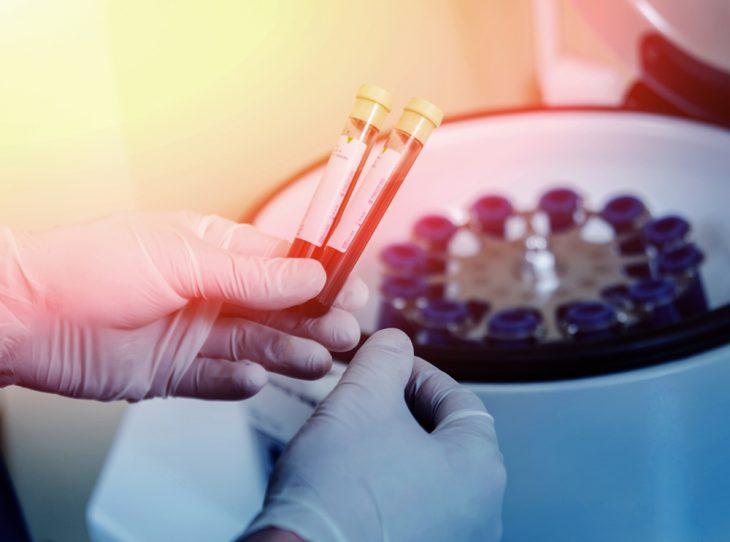 Расшифровка биохимического анализа крови онлайн
