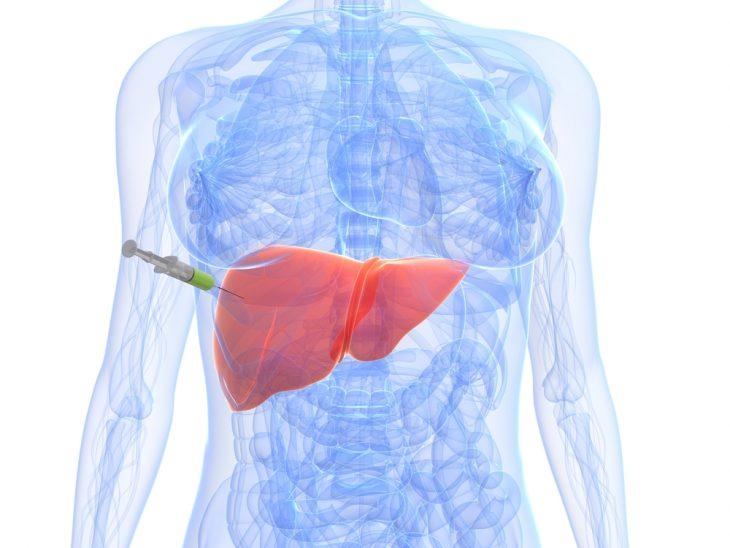 Биопсия печени что это такое и как ее делают, пункционная биопсия