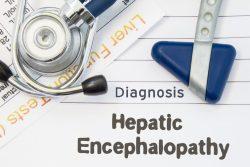 Печёночная энцефалопатия: симптомы, лечение
