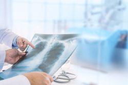 Рентген (рентгенография) органов грудной клетки: показания и противопоказания