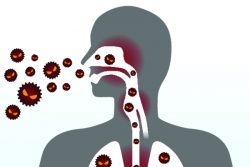 Лечение острого бронхита в домашних условиях