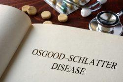 Болезнь Осгуда-Шлаттера у подростков: причины, симтомы, лечение