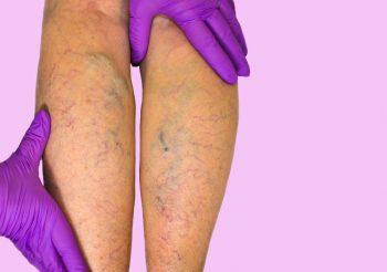 Как лечить варикоз на ногах в 52