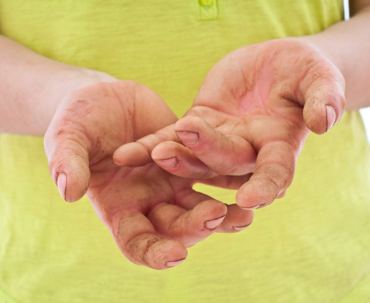Кератодермия подошв и ладоней - виды, симптомы, лечение кремами