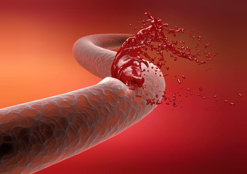 Урологическое кровотечение первая помощь